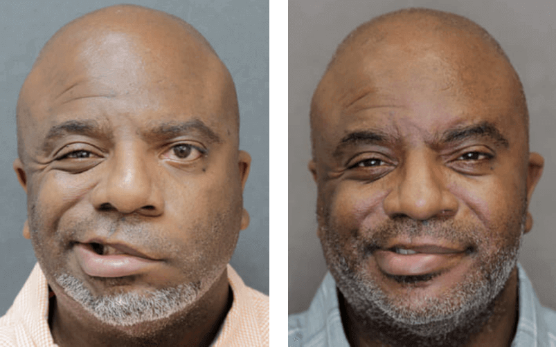 Patient with facial paralysis before and after treatment