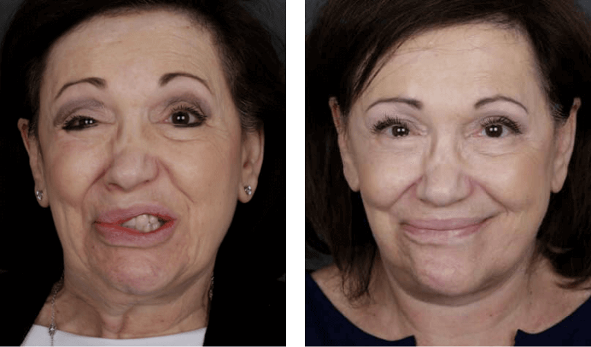 A patient with facial paralysis before and after treatment